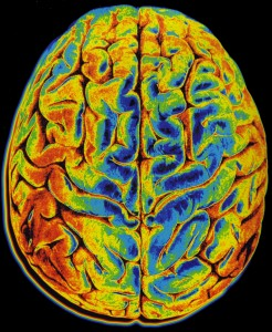 Brain Imaging Provides Window into Consciousness