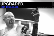 TRANSHUMANISM TEST PILOTS: Robotic Arm Connected Directly to Skeleton (VIDEO)